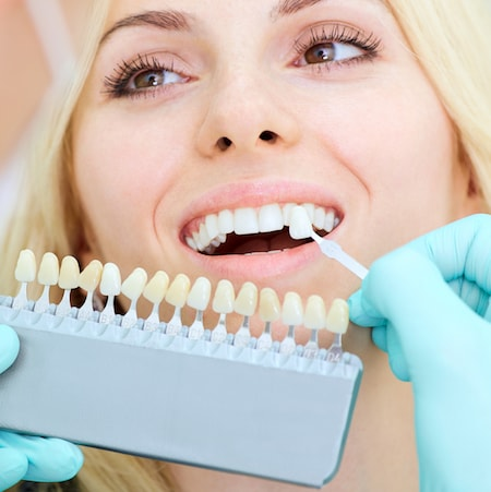 Female patient smiling as Dr. Jelsing compares their tooth shade with our whitening scale