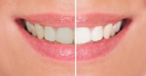 Comparison of smile before and after teeth whitening treatment.